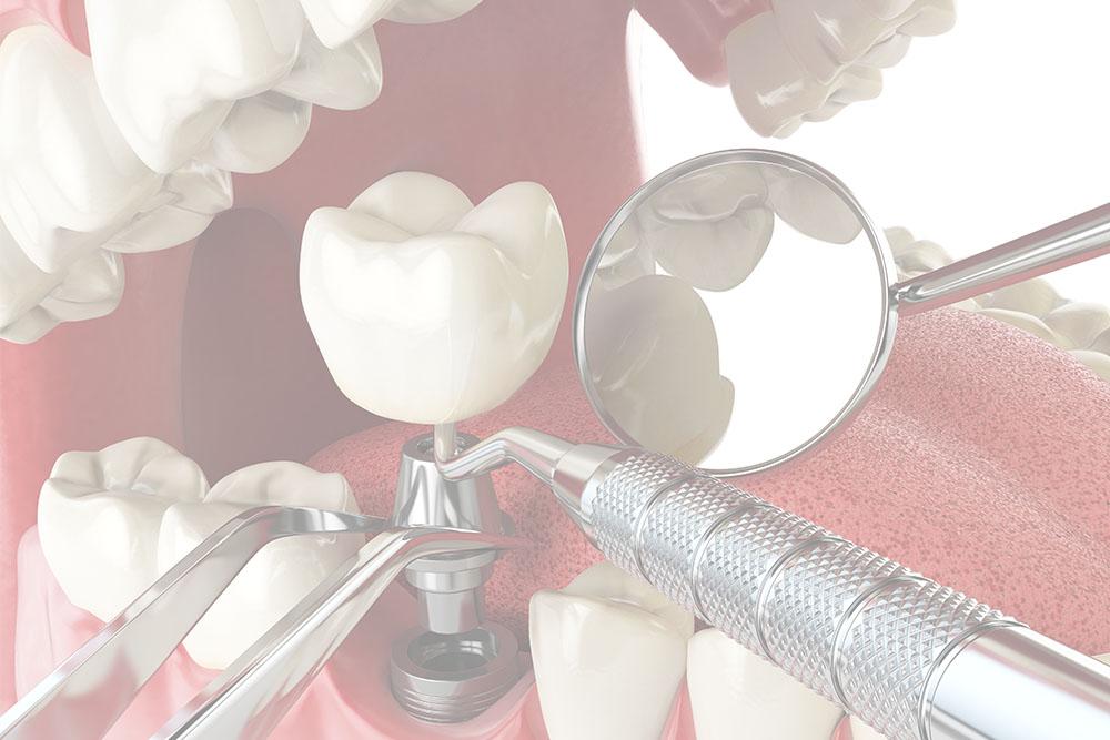 tannlege-Tannlege Bøler-Tannlege Helsfyr-Tannlege Bryn-Tannlege Lambertseter-Tannleger Helsfyr-Tannleger Nordstrand-Tannleger Bryn-Tannleger Lambertseter-Tannleger Skullerud